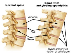 Ankylosing Spondylitis and Homeopathy