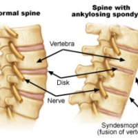 Homeopathy can cure Ankylosing Spondylitis